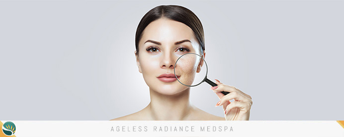 Age Spots Treatment in Coquitlam, BC