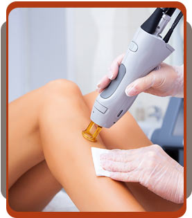 Laser Treatments in Coquitlam, BC