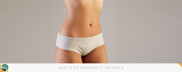 Stretch Marks Treatment in Coquitlam, BC