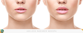 Thin Lips Treatment in Coquitlam, BC