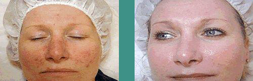 Before After At Skin Care Treatment Vancouver And Anti Aging Med