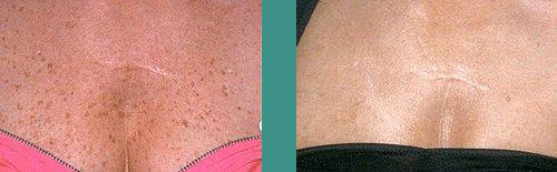 Pigmented Lesions - Before & After