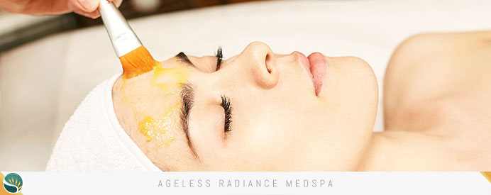 Chemical Peels in Coquitlam, BC