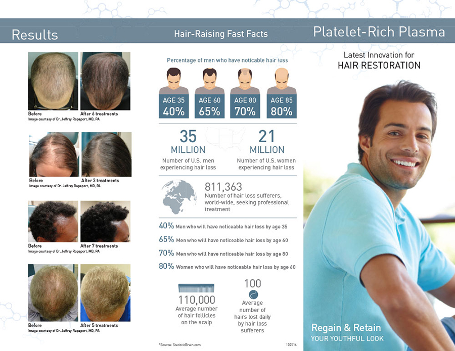 PRP Hair Restoration Near Me in Coquitlam, BC